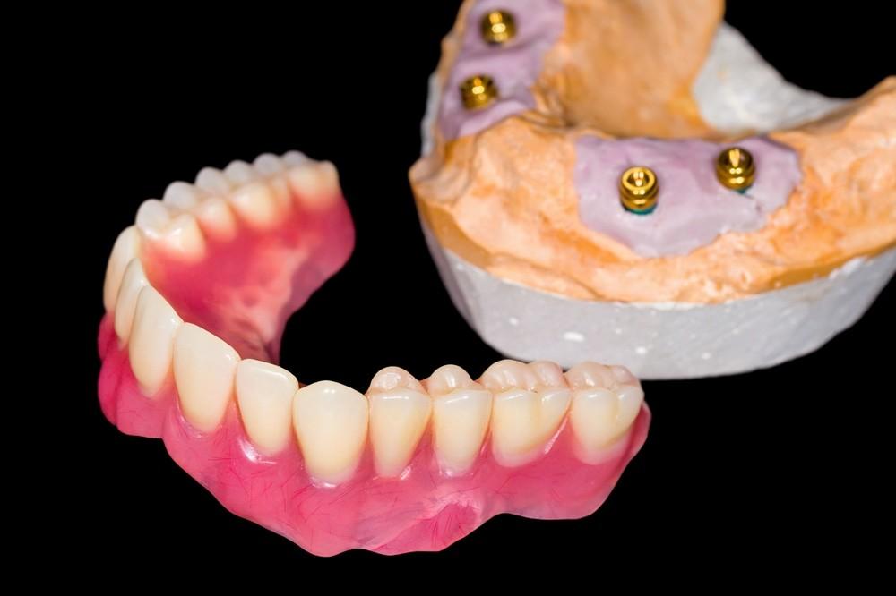 Все о зубных протезах в картинках